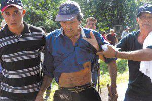 El campesino Pedro José Guzmán López fue uno de los heridos con bala de plomo disparada por efectivos de la Policía Nacional en la garita del municipio de Nueva Guinea. Los manifestantes pretenden llegar a Managua para exigir la derogación de la Ley del Canal Interoceánico. LA PRENSA/R. FONSECA